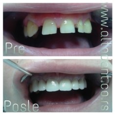 The patient came with the desire to sanitize the upper dental array for functional and aesthetic reasons. A circular metal-ceramic bridge with crowns with ceramic edges was made for better aesthetic and functional properties.