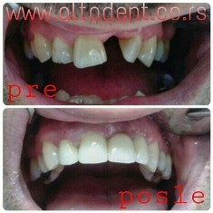 The patient came to the clinic with the desire to relieve the dentition in the upper jaw. There was a visible shortage of the first left incisor and periodontopathy in the advanced stage of the rest of the teeth. First all the teeth were removed in which it was necessary and then a circular metal- ceramic bridge with crowns with ceramic edges for better aesthetic properties.