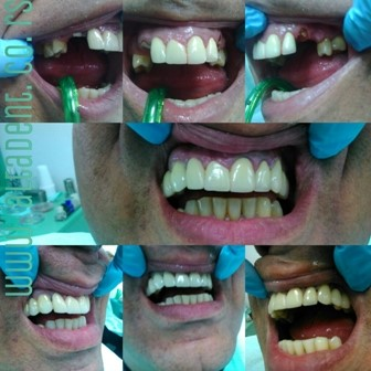 The patient appeared with a deficiency of 3 and 4 booth left and right aged in the upper jaw and justified by the need to compensate them. The widened bridge range is 2-5 from the left and on the right in the upper jaw.