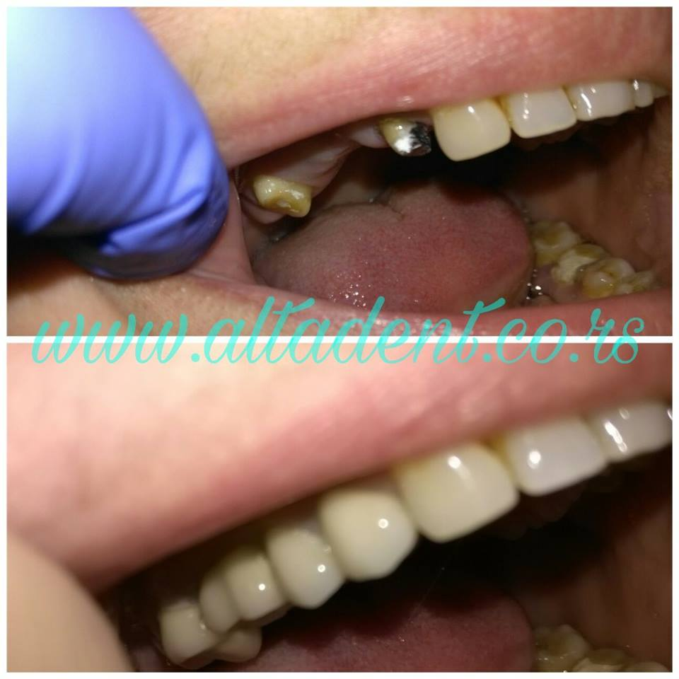 Metalokeramički most 14-17, Dr Tanja Eić Preradović with dental-lab Tarbuk